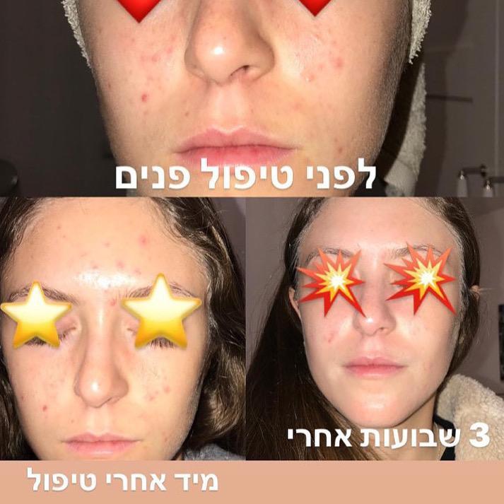 סיסי בן סימון - הקליניקה